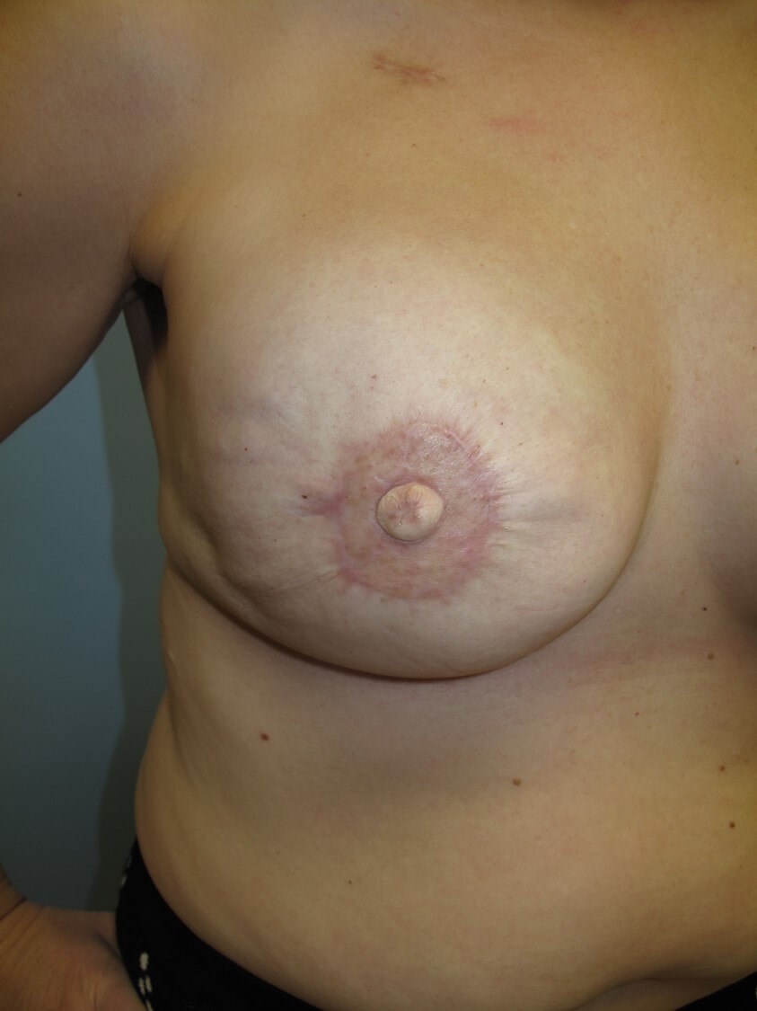 Breast Reconstruction Right Reconstructed Nipple