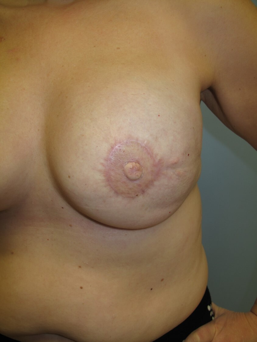 Breast Reconstruction Left Reconstructed Nipple
