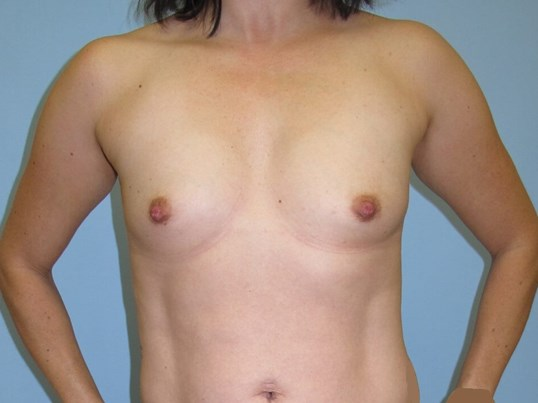 Breast Augmentation Before (Front)