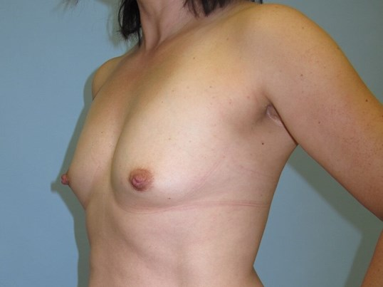 Breast Augmentation Before (Oblique View)