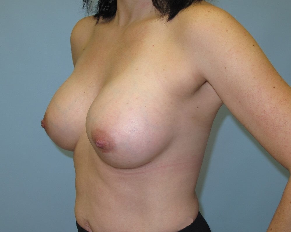 Breast Augmentation After (Oblique View)