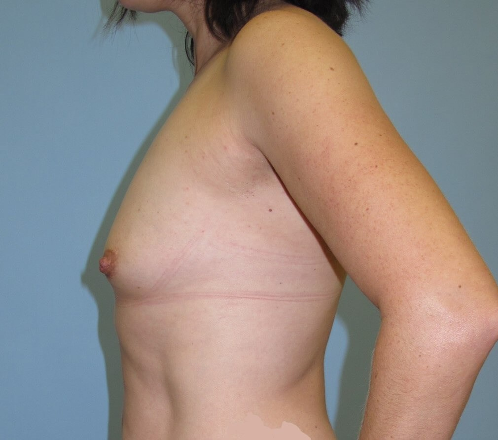 Breast Augmentation Before (Side View)