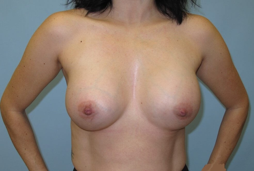 Breast Augmentation After (Front)
