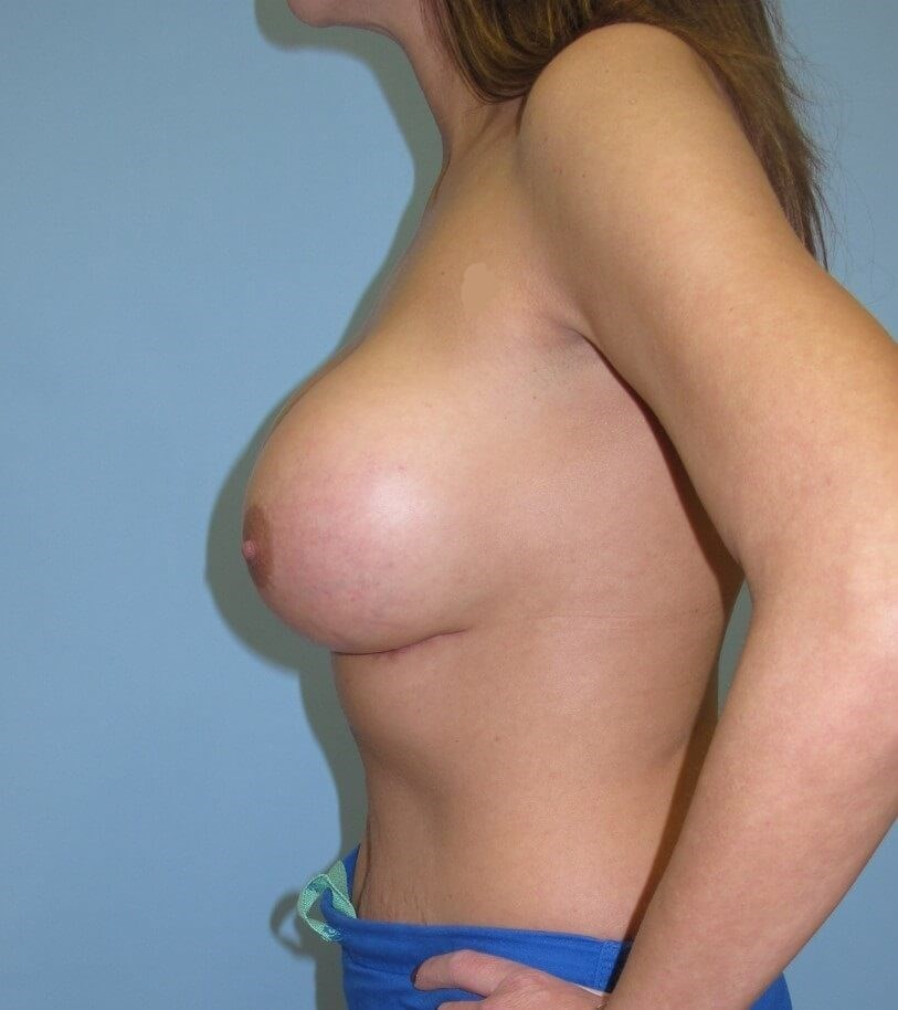 Breast Augmentation After (Side View)