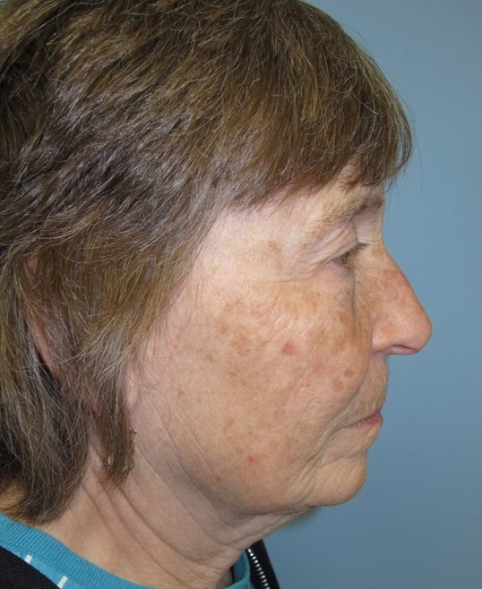 Blepharoplasty Before
