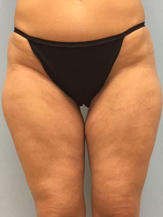 VelaShape III for Cellulite Before