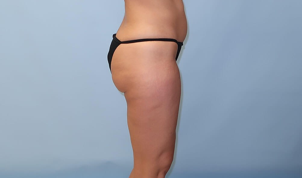 VelaShape III for Cellulite After