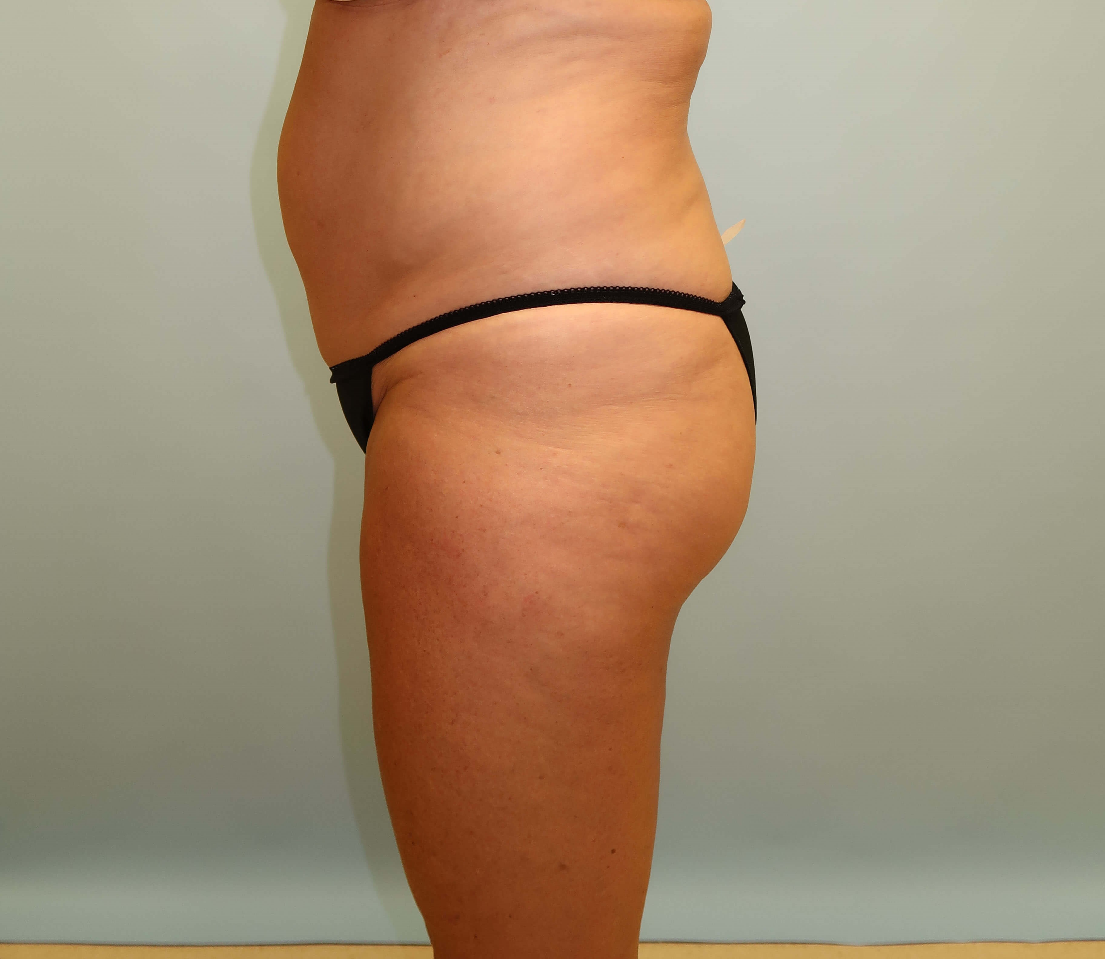 UltraShape Power/VelaShape III Before