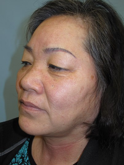 East Asian blepharoplasty Before