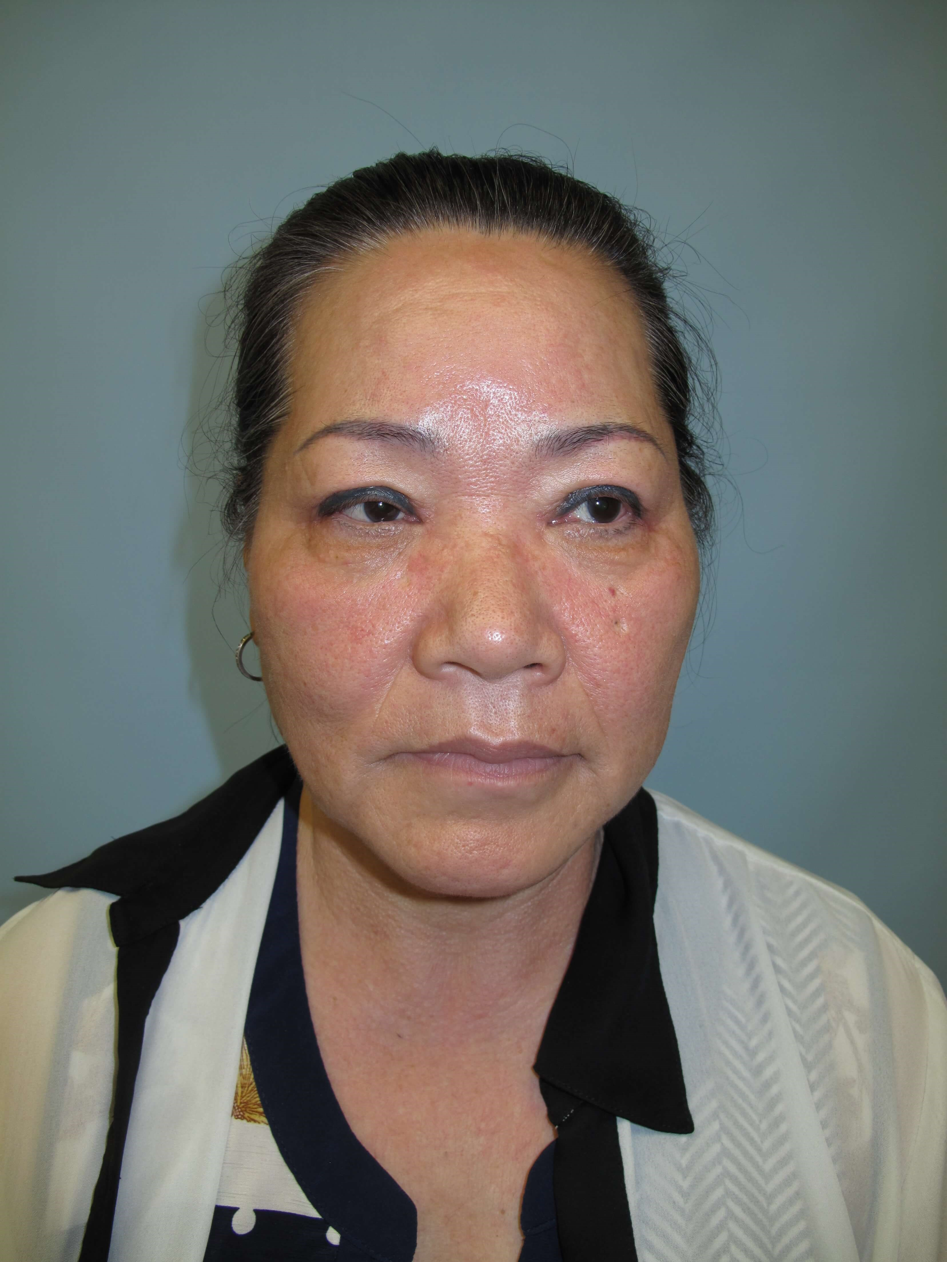 East Asian blepharoplasty After