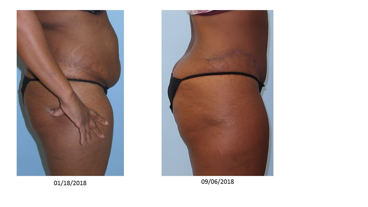 Tummy Tuck with VelaShape III Before