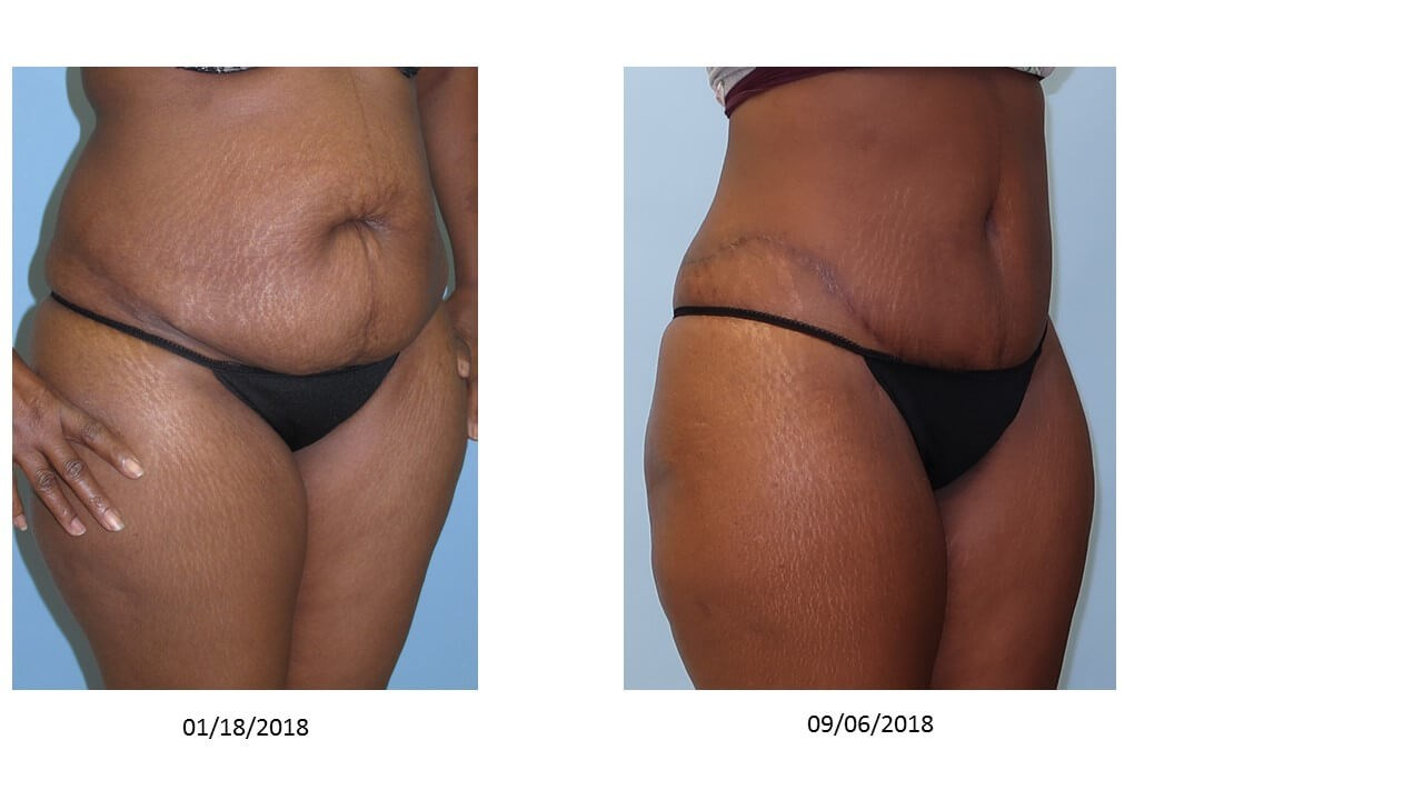 Tummy Tuck with VelaShape III After