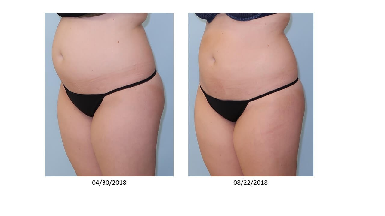 UltraShape Power/VelaShape III After
