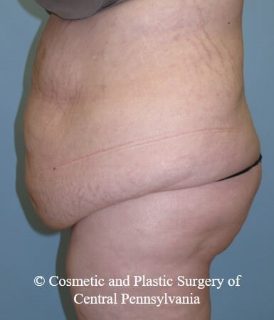 Panniculectomy Before