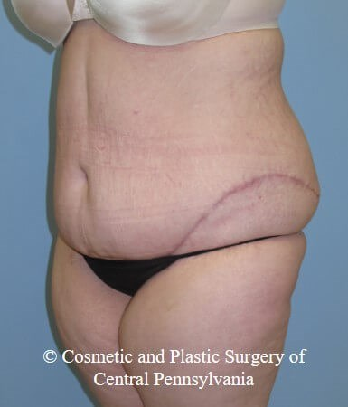 Panniculectomy After
