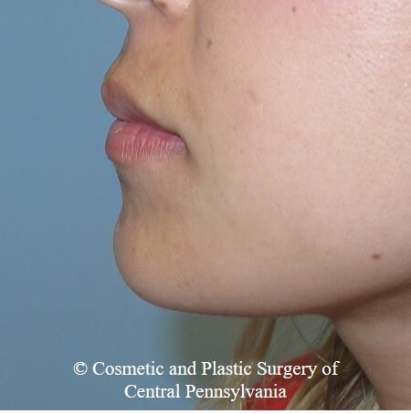 Juvederm Vobella lip filler Before