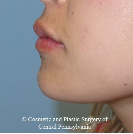 Juvederm Vobella lip filler After
