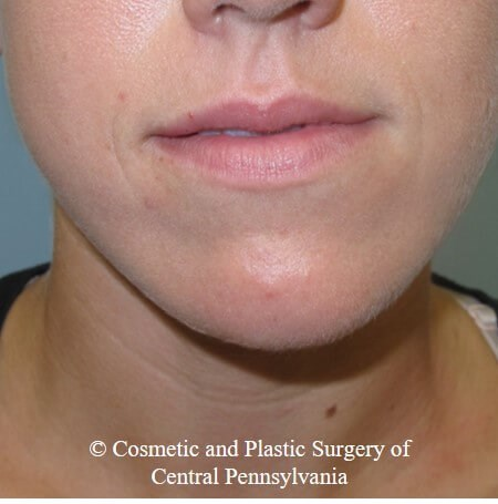 Juvederm Vobella for the lips Before