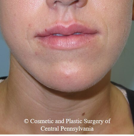 Juvederm Vobella for the lips After