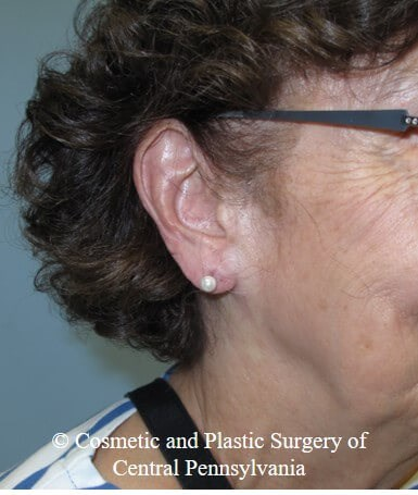 Vollure - ear lobule filler After