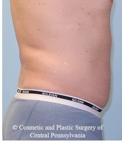 UltraShape Power and VelaShape Before