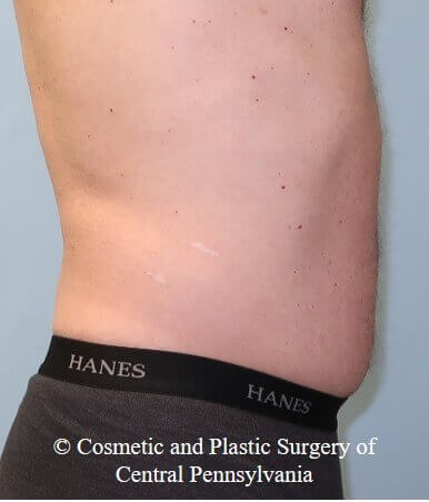 UltraShape Power and VelaShape After