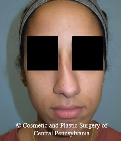 Septorhinoplasty Before