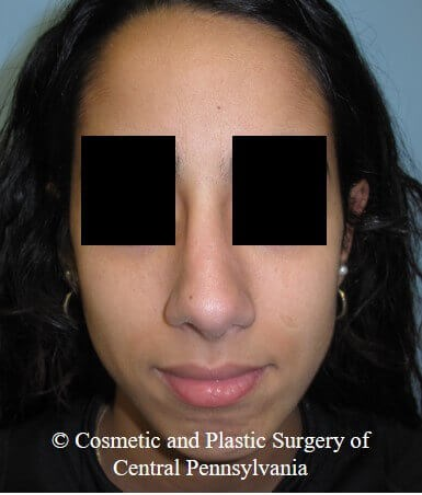 Septorhinoplasty After