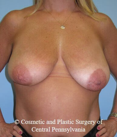 Breast Lift - mastopexy Before