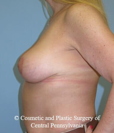 Breast Lift - mastopexy After