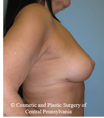 Breast Lift (Mastopexy) After