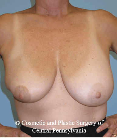 Breast Lift (Mastopexy) Before