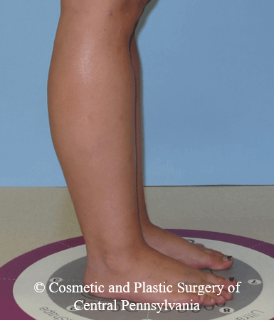 Lower Leg Liposuction After