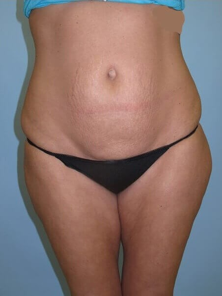 UltraShape Power/VelaShape III Before (Front View)