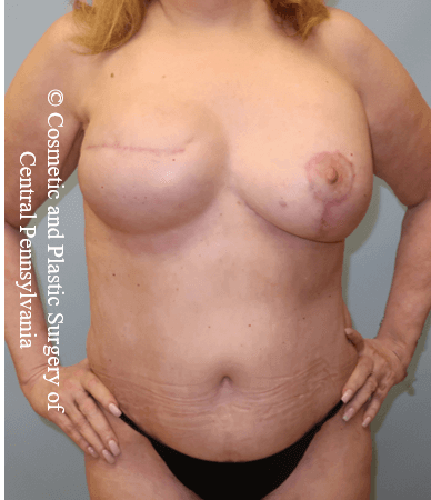 Breast Recon rev & Tummy Tuck After